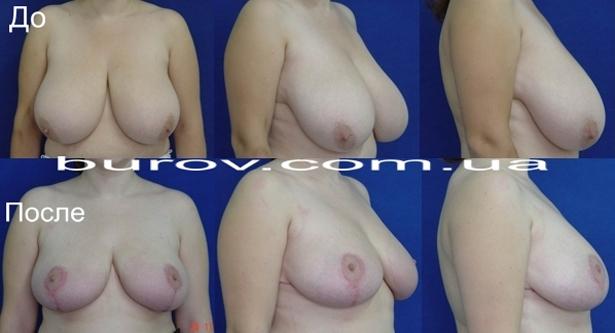 Уменьшение груди в Одессе в нашей клинике пластической хирургии.