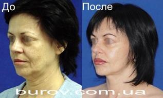 Пластическая хирургия в Одессе по доступным ценам от Бурова А.А.